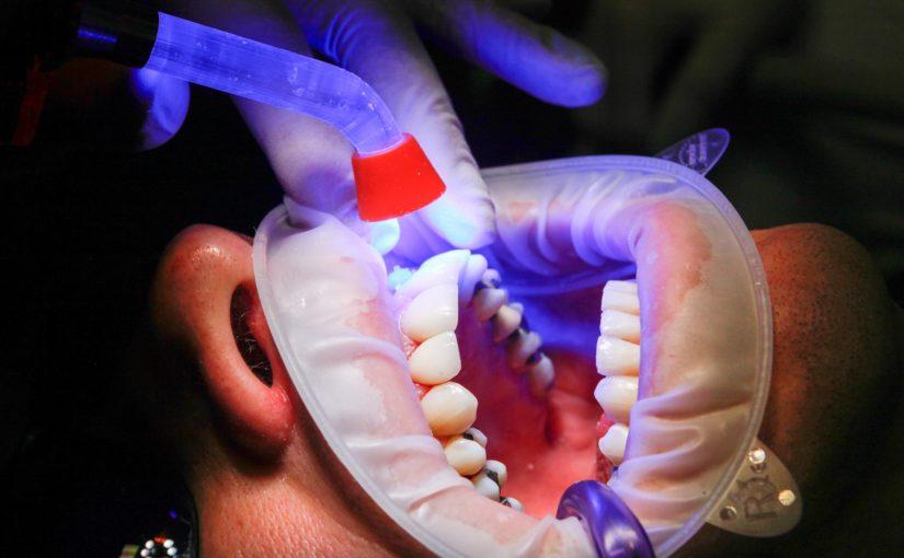 Zły sposób odżywiania się to większe niedostatki w ustach natomiast dodatkowo ich brak
